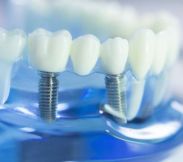 Nampa Dental Implants